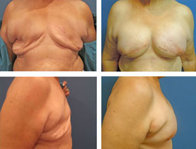BEFORE & AFTER: breast reconstruction #2