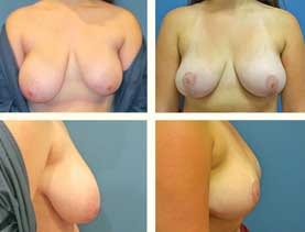 BEFORE & AFTER: Breast Reduction #12
