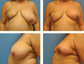 BEFORE & AFTER: Left Breast Reduction #13