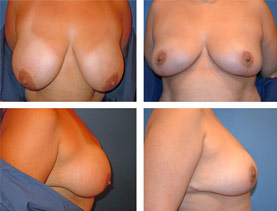 BEFORE & AFTER: Breast Reduction #1