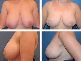 BEFORE & AFTER: breast reduction #2