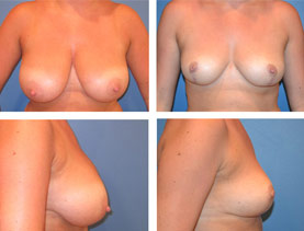 BEFORE & AFTER: Breast reduction #3