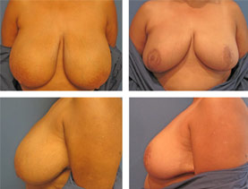 BEFORE & AFTER: Breast Reduction #7