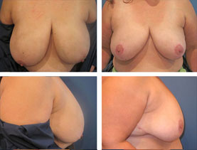 BEFORE & AFTER: breast reduction #5