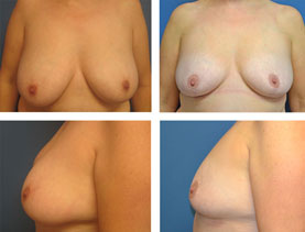 BEFORE & AFTER: Breast Reduction #8