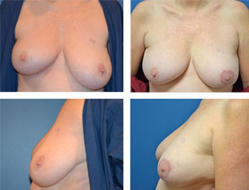 BEFORE & AFTER: Breast Reduction #9