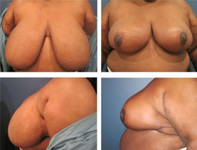 BEFORE & AFTER: Breast reduction #6