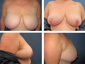 BEFORE & AFTER: Breast Reduction #4