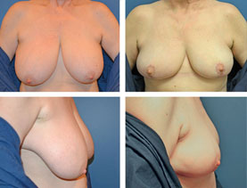 BEFORE & AFTER: Breast Reduction #10