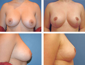 BEFORE & AFTER: Breast Reduction #11