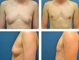 BEFORE & AFTER: Chest Wall Reconstruction (Female to Male) #17