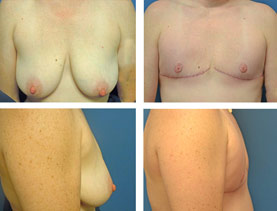 BEFORE & AFTER: Chest Wall Reconstruction (Female to Male) #1