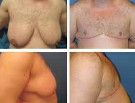 BEFORE & AFTER: Chest Wall Reconstruction (Female to Male) #6