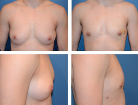BEFORE & AFTER: Chest Wall Reconstruction (Female to Male) #2