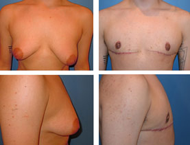 BEFORE & AFTER: Chest Wall Reconstruction (Female to Male) #3