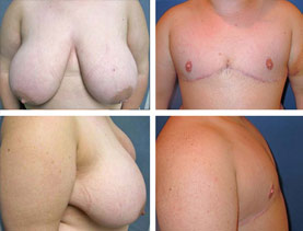 BEFORE & AFTER: Chest Wall Reconstruction (Female to Male) #5