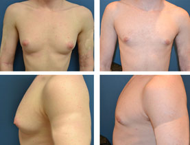BEFORE & AFTER: Chest Wall Reconstruction (Female to Male) #4