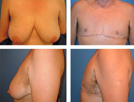 BEFORE & AFTER: Chest Wall Reconstruction (Female to Male) #7