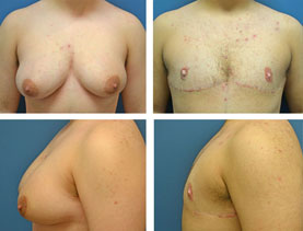 BEFORE & AFTER: Chest Wall Reconstruction (Female to Male) #8