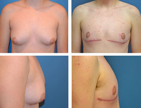 BEFORE & AFTER: Chest Wall Reconstruction (Female to Male) #9