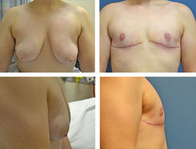 BEFORE & AFTER: Chest Wall Reconstruction (Female to Male) #10