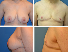 BEFORE & AFTER: Chest Wall Reconstruction (Female to Male) #11