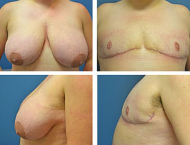 BEFORE & AFTER: Chest Wall Reconstruction (Female to Male) #12