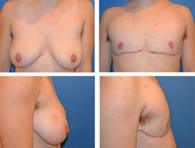 BEFORE & AFTER: Chest Wall Reconstruction (Female to Male) #13