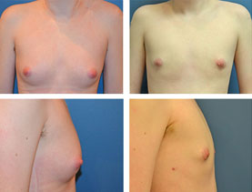BEFORE & AFTER: Chest Wall Reconstruction (Female to Male) #14