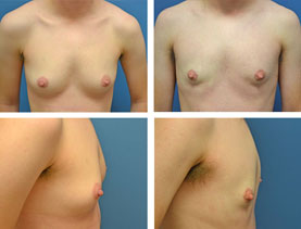 BEFORE & AFTER: Chest Wall Reconstruction (Female to Male) #15