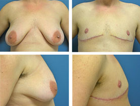 BEFORE & AFTER: Chest Wall Reconstruction (Female to Male) #16