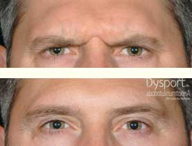 BEFORE & AFTER: Frown lines treated with 50 units of Dysport, day 14.