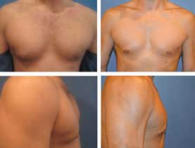 BEFORE & AFTER: Gynecomastia surgery performed by Dr. Melissa Johnson