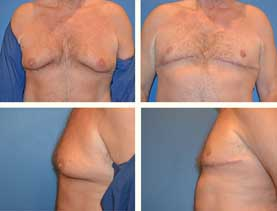 BEFORE & AFTER: Gynecomastia surgery performed by Dr. Melissa Johnson.