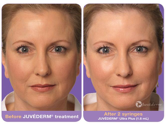 une tisane contre l'acné gratuit