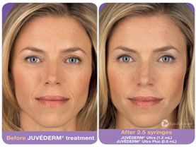 BEFORE & AFTER: Juvederm #2