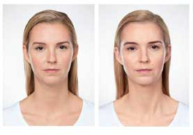 BEFORE & AFTER: Kybella #1 front