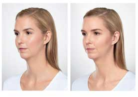 BEFORE & AFTER: Kybella #1 angle