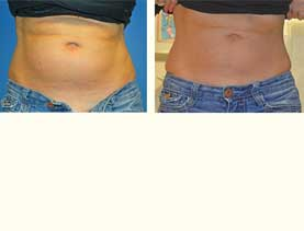 BEFORE & AFTER: Liposuction performed by Pioneer Valley Plastic Surgery.