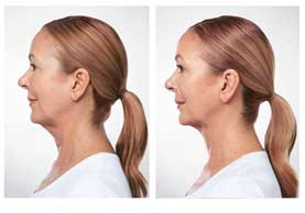 BEFORE & AFTER: Kybella #2 side