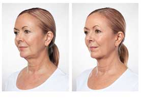 BEFORE & AFTER: Kybella #2 angle