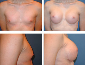 BEFORE & AFTER: Breast augmentation #1