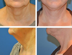 BEFORE & AFTER: Neck Lift surgery performed by Dr. Melissa Johnson