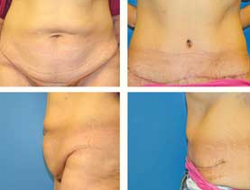 BEFORE & AFTER: Panniculectomy #10 surgery performed by Dr. Melissa Johnson