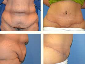 BEFORE & AFTER: Panniculectomy #12 surgery performed by Dr. Melissa Johnson
