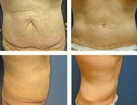 BEFORE & AFTER: Panniculectomy #13 surgery performed by Dr. Melissa Johnson