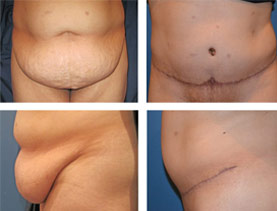 BEFORE & AFTER: Panniculectomy #2 surgery performed by Dr. Melissa Johnson