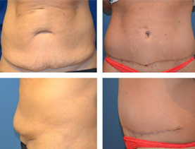 BEFORE & AFTER: Panniculectomy #3 surgery performed by Dr. Melissa Johnson