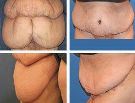 BEFORE & AFTER: Panniculectomy #4 surgery performed by Dr. Melissa Johnson