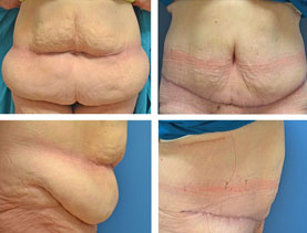 BEFORE & AFTER: Panniculectomy #6 surgery performed by Dr. Melissa Johnson
